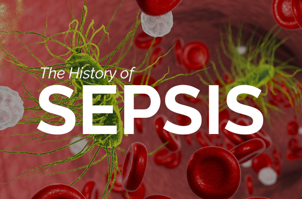 History-Sepsis